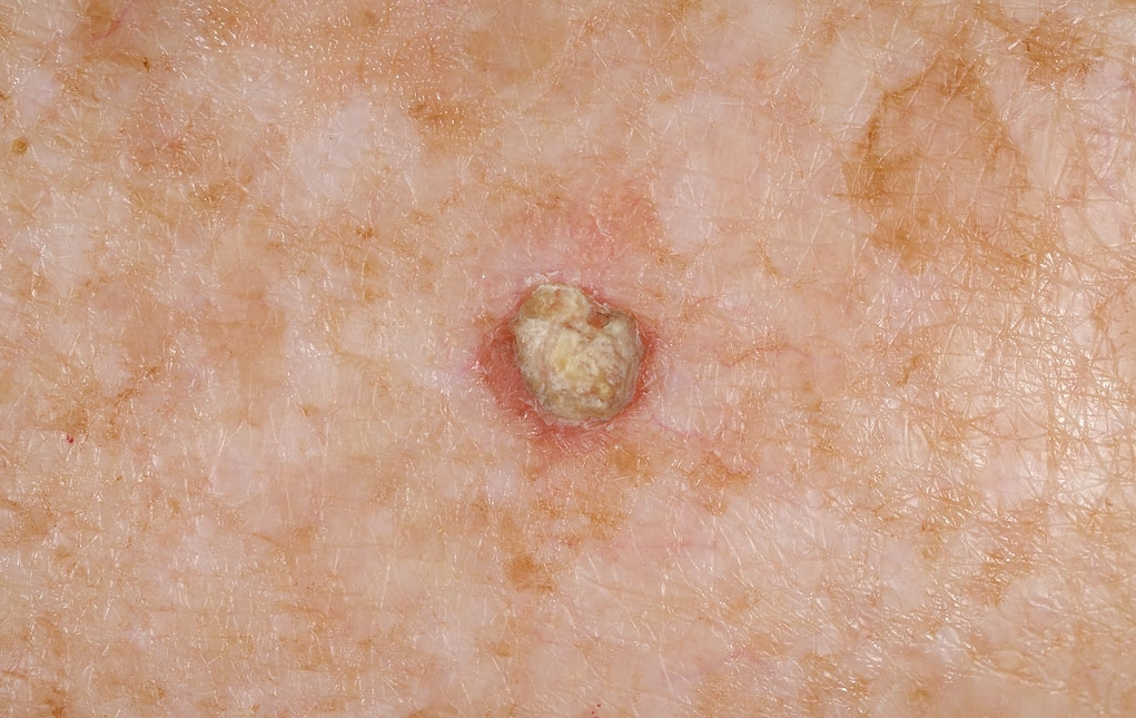 Keratosis Squamous Cell Called Squamous Cell
