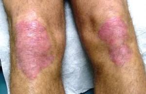 psoriasis roanoke dermatology